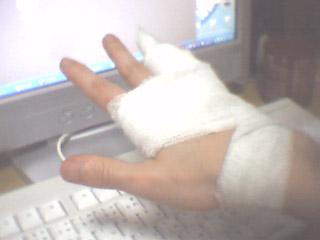 怪我した手