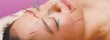 京橋より10分大阪府大東市住道トータルエステティックディアー美容鍼灸のイメージ写真です。