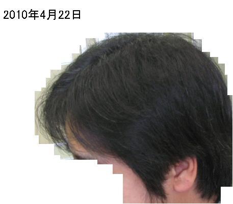 20100422