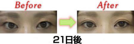 bf3-H1.jpg