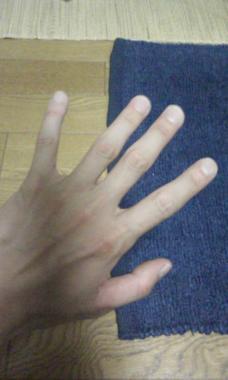 指、怪我、した
