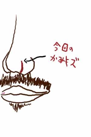 hanakizu1.jpg