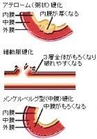type-sclerosis.jpg